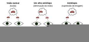 esquema ambliopia