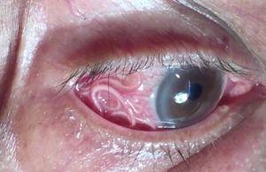 b_300_0_16777215_00_https___hypescience.com_wp-content_uploads_2018_10_verme-olho-paciente-india-1.jpg