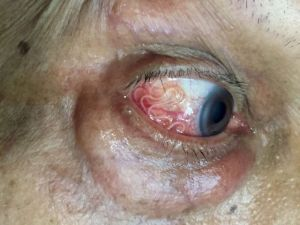 b_300_0_16777215_00_https___hypescience.com_wp-content_uploads_2018_10_verme-olho-paciente-india-4-838x629.jpg