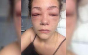 Médicos afirmaram que Tylah poderia ter ficado cega após usar produto químico que causa reação alergica em sua pele
