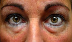 remedios para desinflamar os olhos inchados
