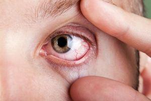 sinais de reumatismo nos olhos 17535 l