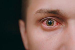 sifilis ocular