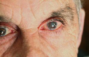 sintomas da catarata que voce precisa estar atento