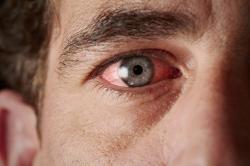 Previna-se: alergias oculares aumentam na primavera