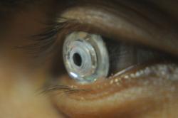 Cientistas criam lentes de contato que dão zoom quando você pisca duas vezes