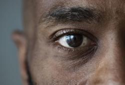 Problema na visão pode ser o primeiro sinal de distúrbios de tireoide