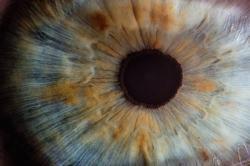 Adolescente perde parte da visão depois de olhar para laser de brinquedo
