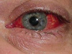 Olho Vermelho -  O que ele pode indicar?