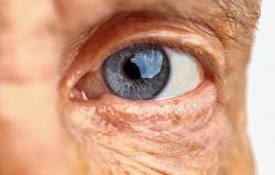 Degeneração macular relacionada à idade: tratamentos disponíveis para evitar a perda da visão