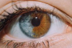Traços genéticos oculares que as tornam as pessoas únicas