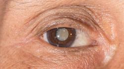 Catarata: durante a pandemia deve-se procurar atendimento oftalmológico presencial e cirúrgico