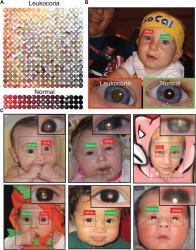 Aplicativo detecta problemas de visão em crianças a partir de fotos