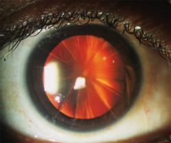 As cirurgias oculares que deixavam a córnea fatiada como uma pizza