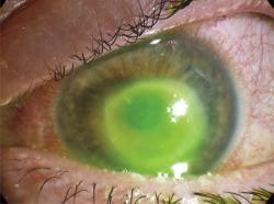 Mais uma pessoa fica cega após usar lentes de contato no chuveiro