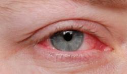 Estudo associa doenças oculares e depressão