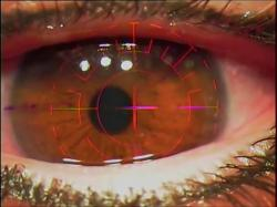 Miopia, hipermetropia, astigmatismo? Veja o tipo de cirurgia mais indicado