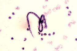 Verme parasita com 15 cm de comprimento é removido do olho de um indiano