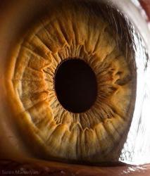Pacientes cegos voltaram a enxergar depois de transplante de células-tronco