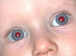 Olhos vermelhos nas fotos