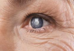 Aproximadamente 70 milhões de pessoas no mundo sofrem com algum tipo de glaucoma